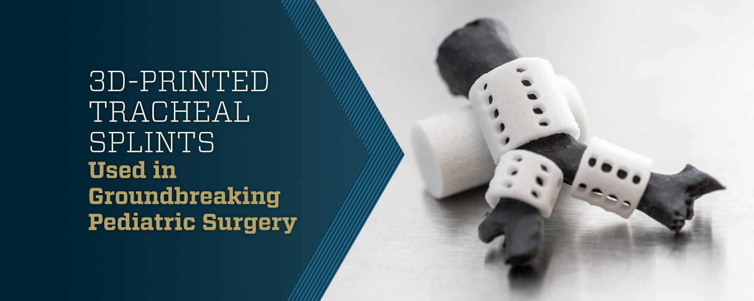 3D-Printed Tracheal Splints Used in Groundbreaking Pediatric Surgery